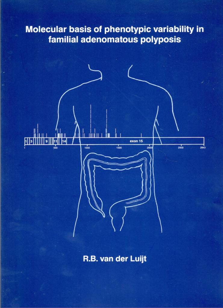 Colorectal cancer phd thesis
